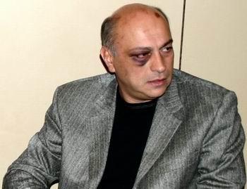 azmaiparashvili02